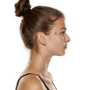acupression tempe contre maux de tête