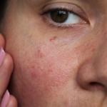 Rosacée, traitement naturel pour en venir à bout